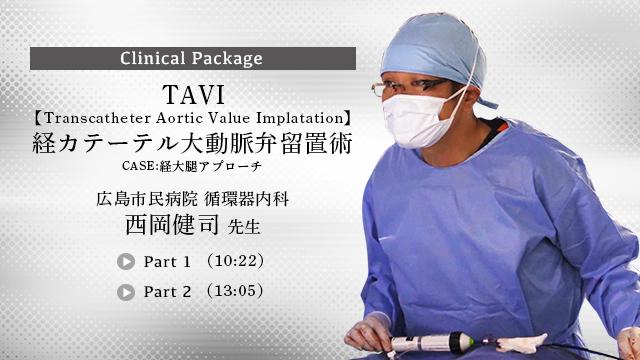 TAVI経カテーテル大動脈弁留置術 ~CASE;経大腿アプローチ