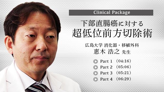 下部直腸癌に対する超低位前方切除術
